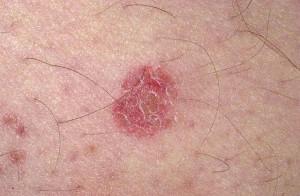 Black Mold Symptoms - Eczema