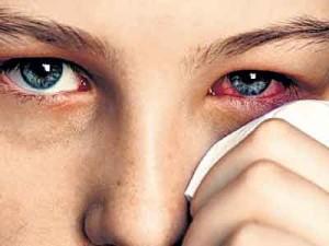 Black Mold Symptoms